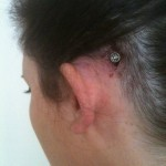 Visible abutment with incision still healing (Cochlear BP100/BAHA3)