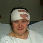 Following implantable BAHA surgery (for Cochlear BP100/BAHA3)