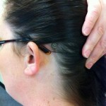 Healed incision with visible abutment (for Cochlear BP100/BAHA3)