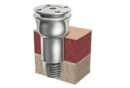 Abutment Extension by Oticon Medical