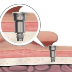 New 9mm Abutment With Inset (fixture is the same as inset) and the abutment here is shown screwed into the fixture (Oticon illustration)