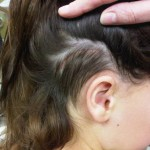 Incision where magnetically coupled plate has been sutured beneath scalp (Sophono Alpha 1 (M))
