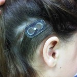 Healed incision site with external base plate magnetically coupled to plate beneath scalp (Sophono Alpha 1 (M))