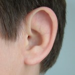 Prosthetic ear being fit over a Microtia ear (glued on ear with adhesive), prosthetic ear made by Greg Gion