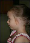 Microtia and Atresia of the left ear before wearing a prosthetic ear made by Robert Barron